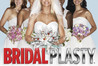 Bridalplasty Image
